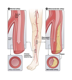 Peripheral artery disease (PAD) refers to diseases of the blood ...